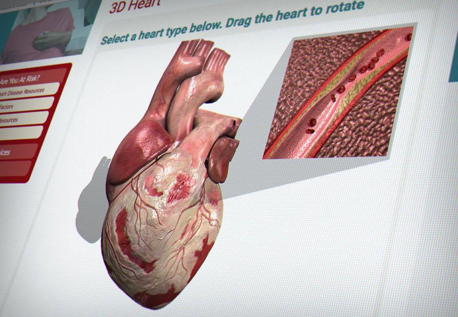 MABU-Portfolio-940x650-HS-3D-Heart-1